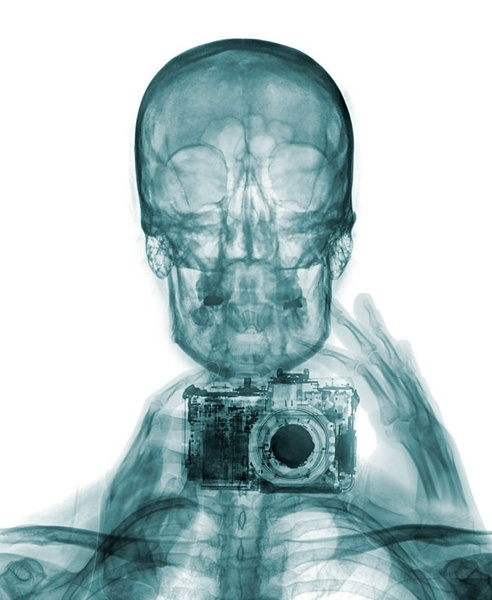 你见过X光自拍照吗?
